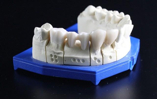 Dental bridge - Mississauga Dentist - Bristol Dental