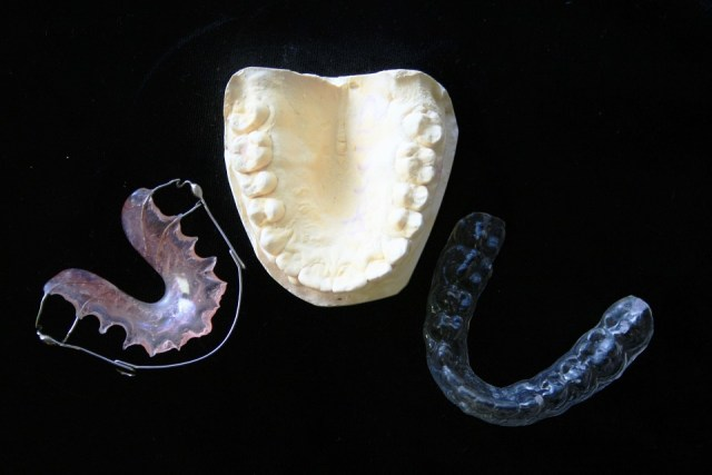 Types of braces - Mississauga Dentist - Bristol Dental