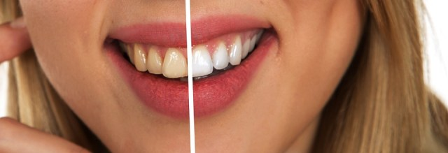 A comparison of teeth before and after teeth whitening - Mississauga Dentist - Bristol Dental