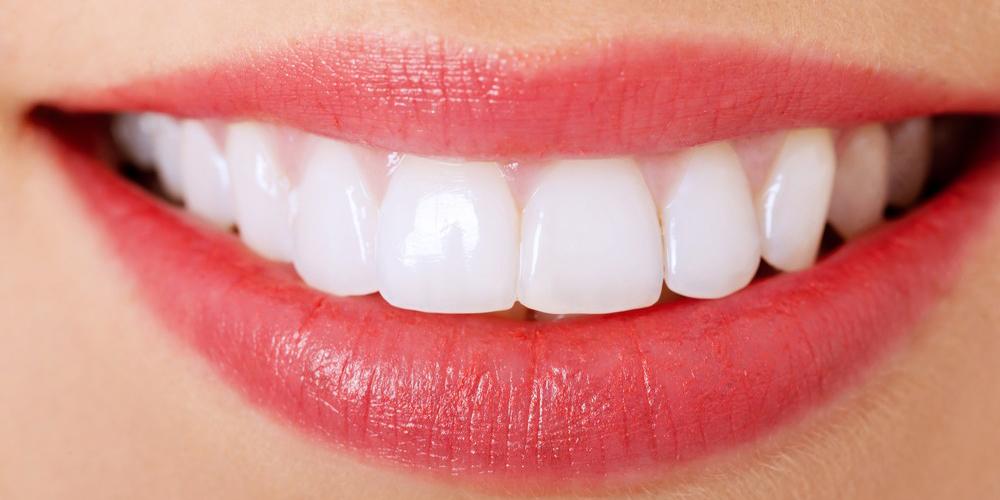 veneers mississauga - dentist mississauga - bristol dental clinic
