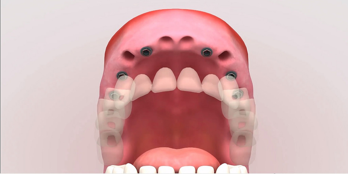 Feel At Ease During Dental Implants Surgery Through Sedation