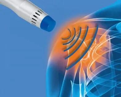 Shockwave Therapy. Chronic injury