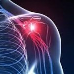 Shoulder Pain. Shoulder Physio. Physio for Shoulder Pain