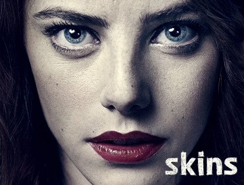 Skins - FIRE (1/4)