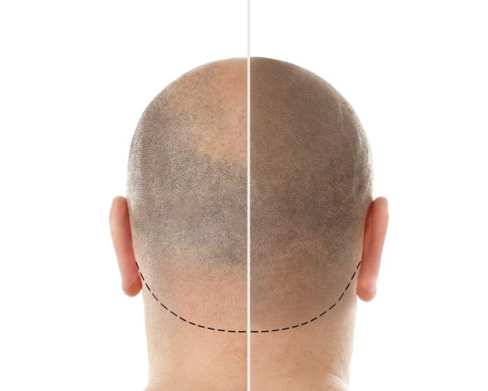 Hairloss Blocker efeitos antes de depois