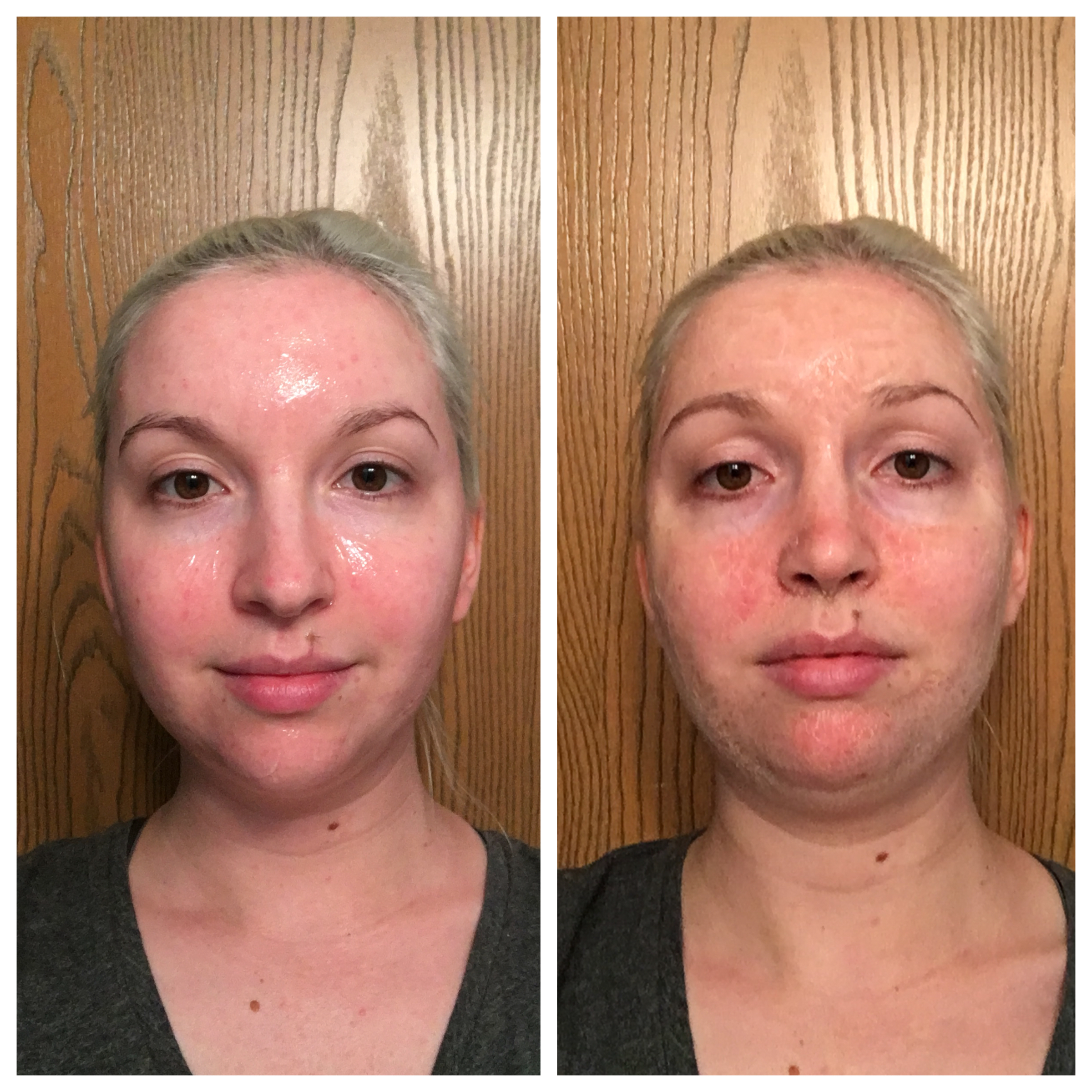 Hanacure All-in-One Facial