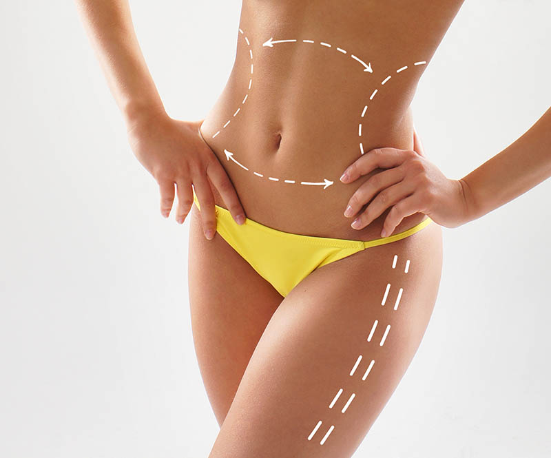 The Best Liposuction Doctors In Los Angeles Offer The Results You Want
