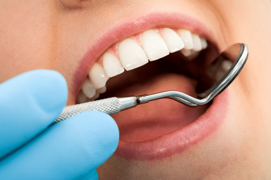 Caring for Your Dental Crown