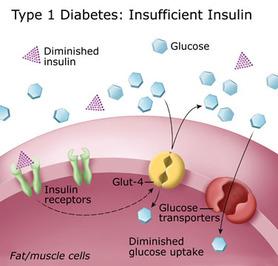 Type 1 Diabetes - About Type 1 Diabetes