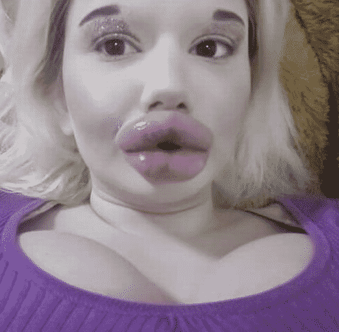 Student with the 'biggest lips in the world' plans to have more filler despite family hating her look