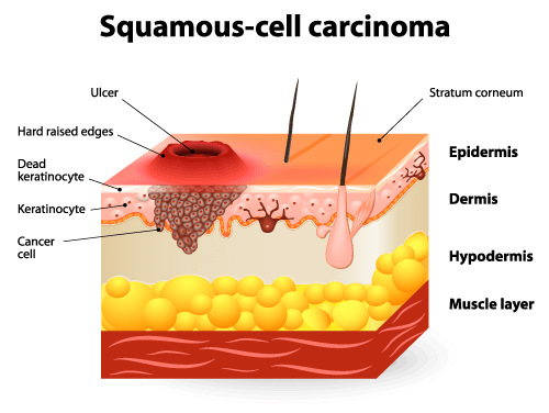 squamous-cell