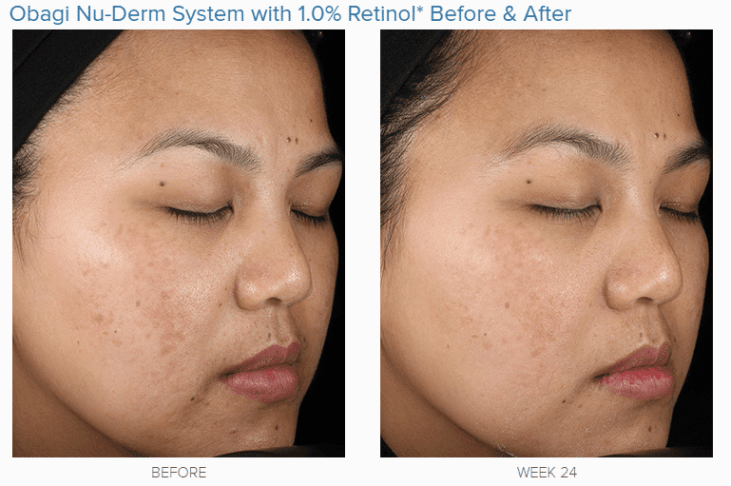 Obagi Nu Derm Reviews - Should you use this 6 Step System?