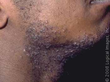 health and fitness shaving bumps