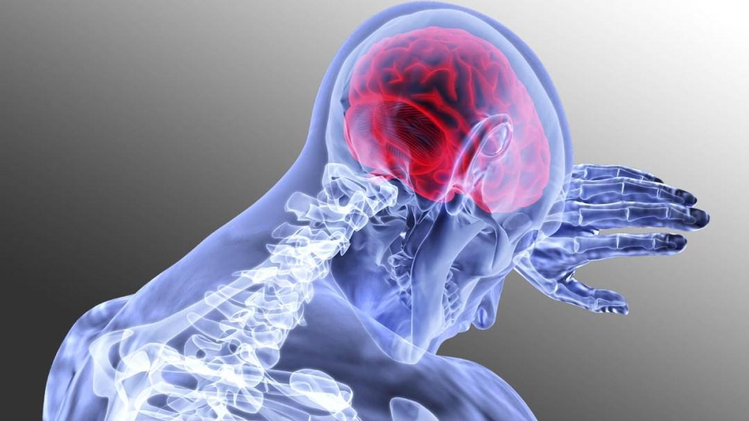 The brain pain