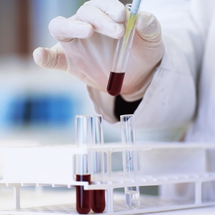 Laboratorium Test Onderzoek Bloedtest Verwantschap Biologisch DNA Reageerbuisjes