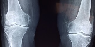 knie orthopedie orthopedische implantaten