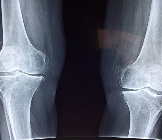 knie orthopedie orthopedische implantaten