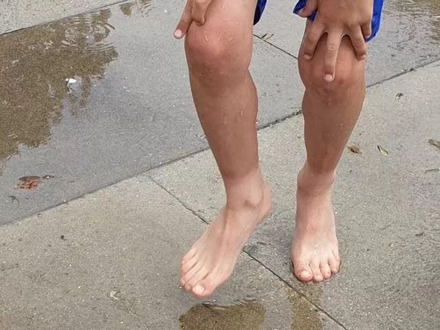 tan lines on legs