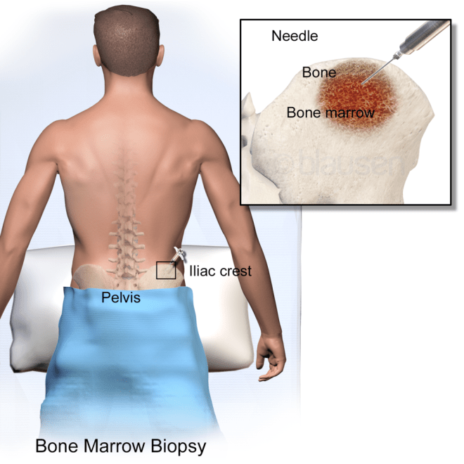 bone-marrow-biopsy-graphic