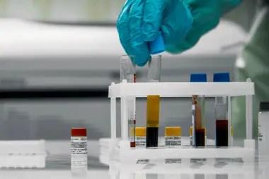 Cada experimento y cada ensayo es un logro en la lucha contra el coronavirus