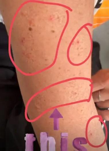 Las pulgas dejaron su marca en el brazo de Barbie Simons