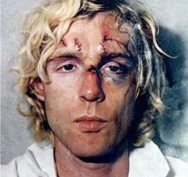 El agresor fue también hospitalizado luego de atentar contra el Beatle y su esposa