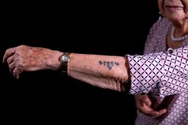Batcheva Dagan, sobreviviente de Auschwitz muestra las marcas de su cuerpo