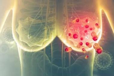 El cáncer de mama mestastásico no tiene cura. Los pacientes permanecen en tratamiento por el resto de su vida