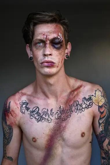 En cada caso se recreó con maquillaje las marcas de los días posteriores a los accidentes