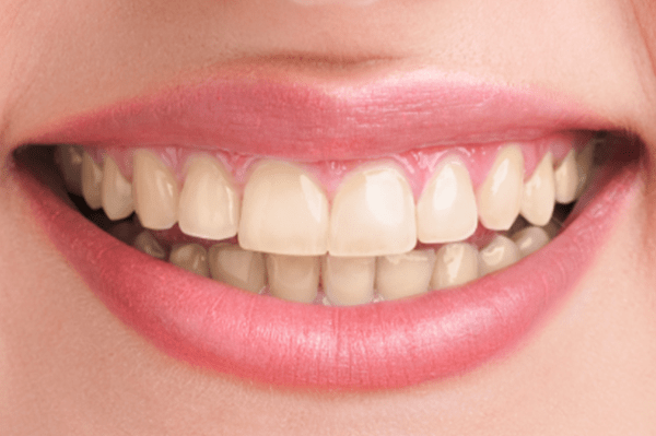 teeth whitening dallas