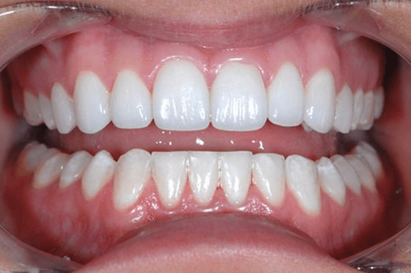 dallas porcelain veneers