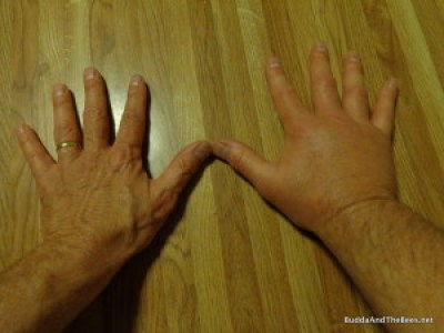 Swollen hand and arm from bee sting