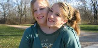 Abby and Brittany Hensel