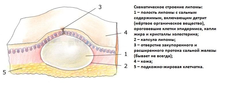 lipoma3011