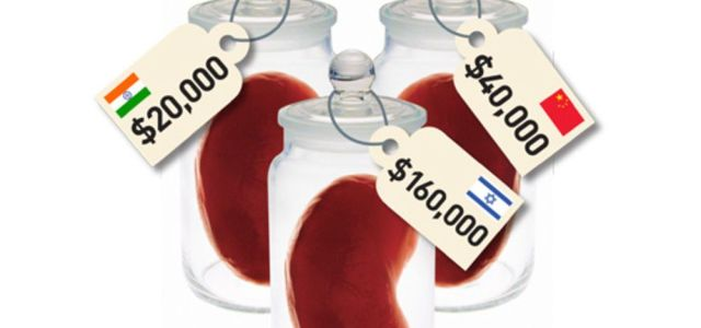 Can You Sell Your Kidney?