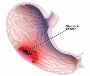 Stomach and Gastric Cancer: Symptoms, Causes, Risk Factors and Treatments
