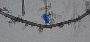 Aureobasidium pullulans. Medical Mycology Lab, University of Wisconsin La Crosse, La Crosse, Wisconsin, USA