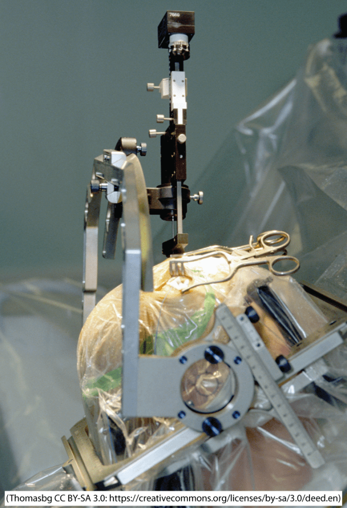 A photo of a patient undergoing stereotactic surgery that shows the head frame mentioned in the text.