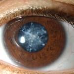 9+ Tanaman obat untuk mata katarak Serta Cara Pembuatannya