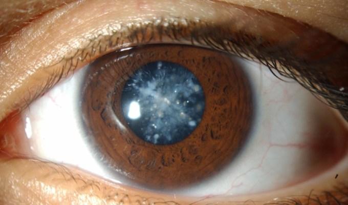 pengobatan mata katarak
