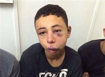 Palestina - Tarek Abu Khdeir