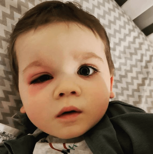 My son nearly lost his vision after an eye infection from bath toys