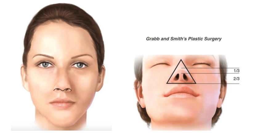鼻頭塑形手術