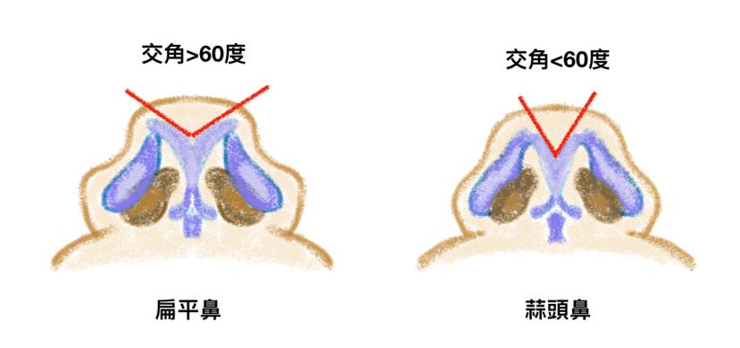 鼻整形,扁平鼻,蒜頭鼻的鼻頭