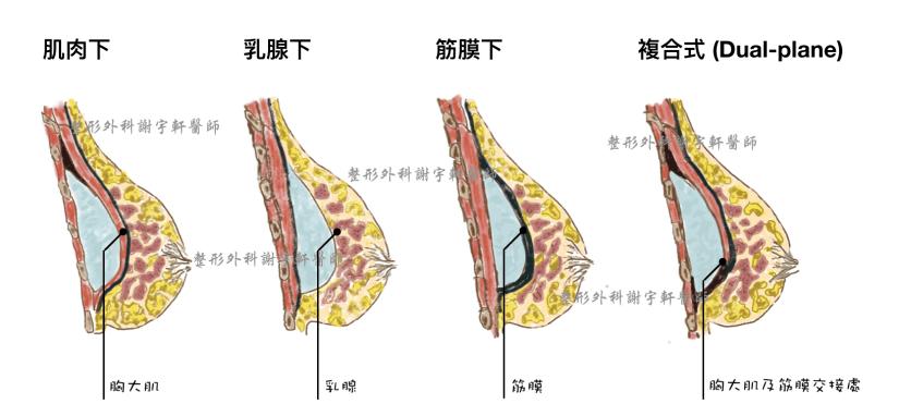 整形外科 謝宇軒 肌肉下 乳腺下 筋膜下 複合式 dual-plane 隆乳手術