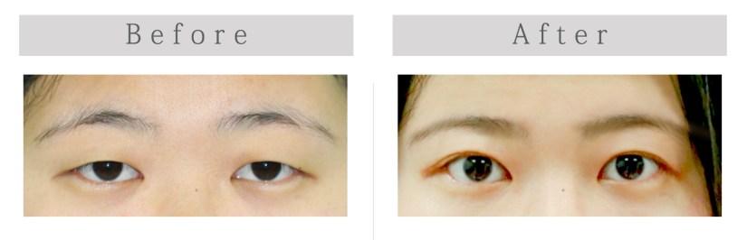 上眼瞼整形手術