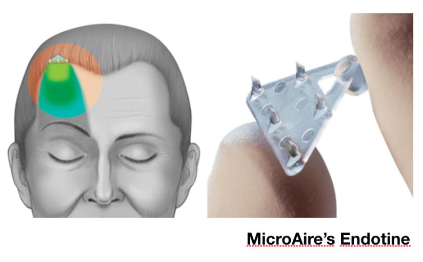 MicroAire's Endotine 五爪釘, 內視鏡前額拉皮手術
