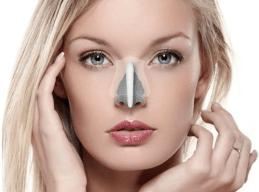一段式隆鼻 I型隆鼻