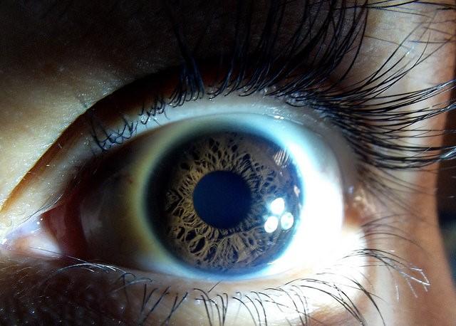 Diagnosing Dementia Through the Retina