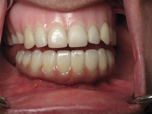 Do tight bottom teeth why my feel Teeth clicking?!